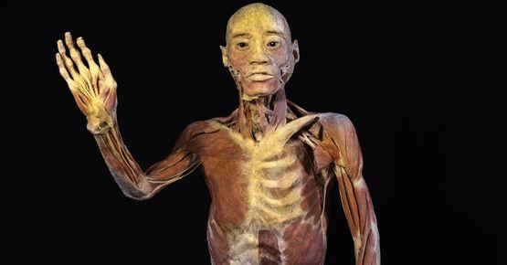 Llega 'bodies' La Exposición De Cuerpos Humanos Reales A Bogotá